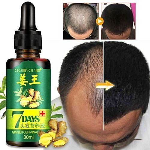 Anti Hair Loss 7days Oil Treatment Hair Growth Essence