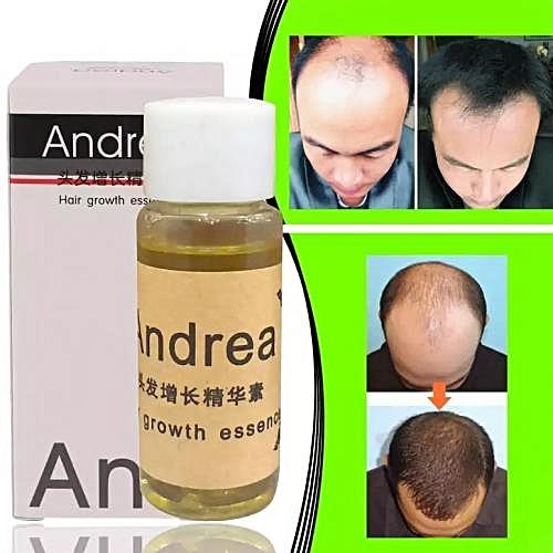 Anti Loss Hair Growth Essence And Beard Growing Oil 20ml - Andrea Oil