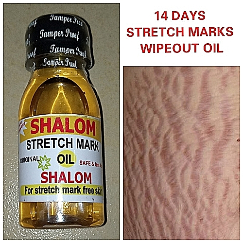 Shalom Stretch Marks Oil