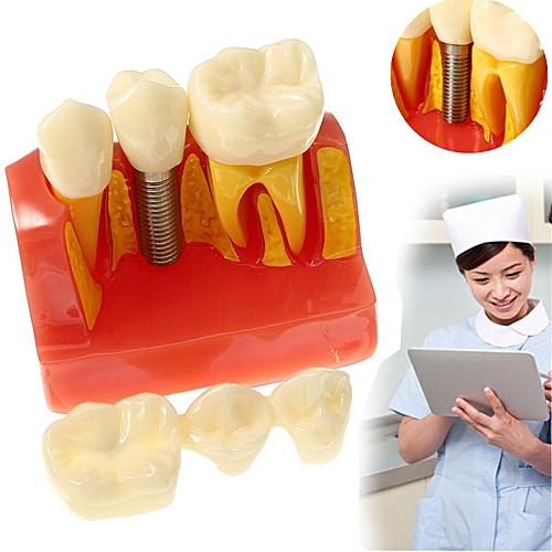 Dental Implant Analysis Crown Bridge Demonstration Teeth Tooth Study Model