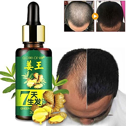 7 Days Hair Growth Care Ginger Essential Oil