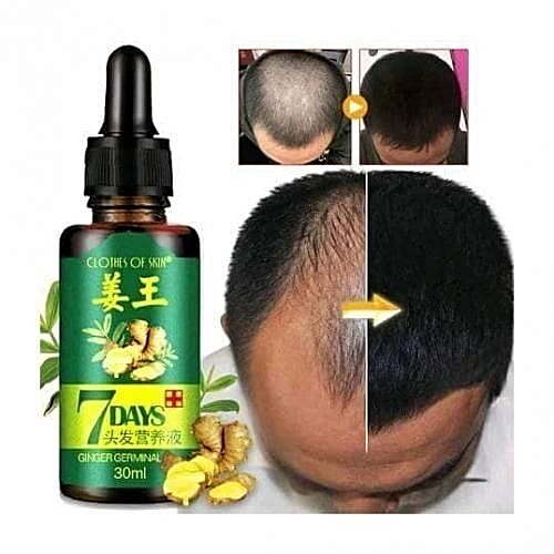 e553080452e CLOTHES OF SKIN 7Days Hair Growth Serum Hair Treatment Serum Hair Loss  Treatment Natural Hair Growth - Anti Hair Loss Promotes Hair Growth,  Solution For ...
