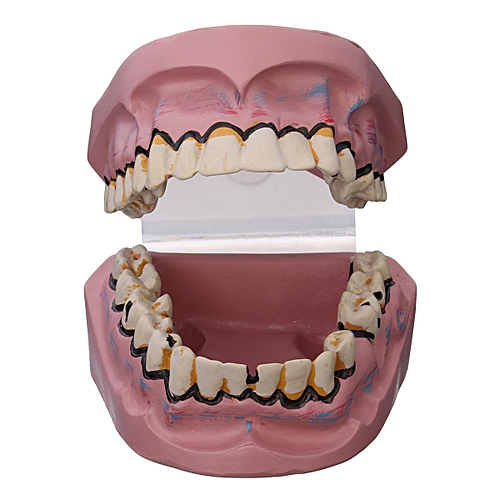 Oral Tooth Model Smoking Harm Smokers Dental Caries Tooth Decay Yellow Teeth Pathology Care Digestion Sentiment