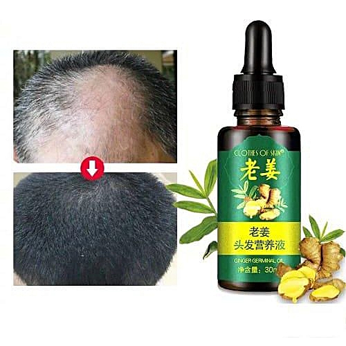 7 Days Ginger Fast Hair Growth Essence For Dry Damaged Hair, Hair Loss And Hair Growth