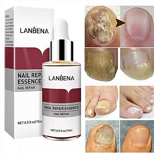 Lanbena Nail Repair Essence For Nail Treatment Anti Fungal Nail ...