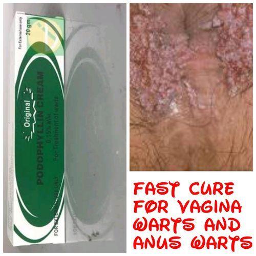 Podophyllin Warts Cream For Anus And Vagina