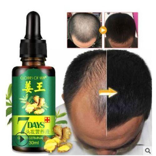 7 Days Ginger Germinal Oil, Bald Head & Restoration