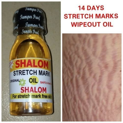 14 Days Stretch Marks Wipeout Oil