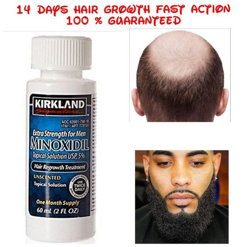 Minoxidil 5% Extra Strength Bald Hair & Beard Growth For Men
