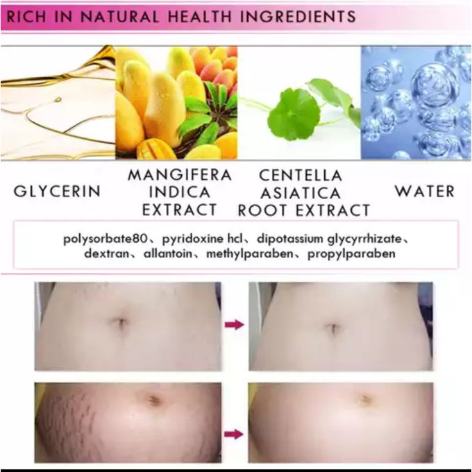 Rtopr Mango Pregnancy Scar Stretch Mark Removal Cream Jumia